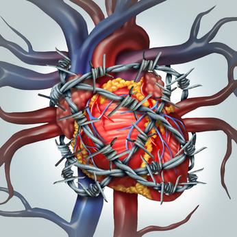 Hypertensive Herzkrankheit: korrekte Kodierung